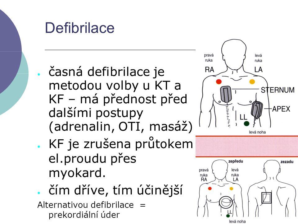Defibrilace ● časná defibrilace je metodou volby u KT a KF – má přednost před dalšími postupy (adrenalin, OTI, masáž) ● KF je zrušena průtokem el.prou