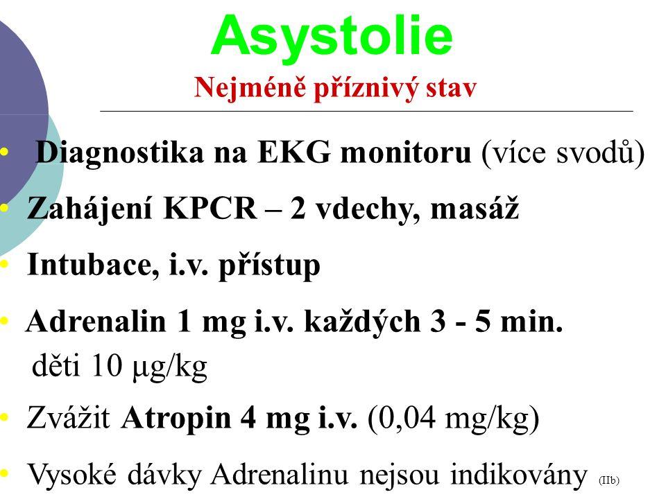 Diagnostika na EKG monitoru (více svodů) Zahájení KPCR – 2 vdechy, masáž Intubace, i.v. přístup Adrenalin 1 mg i.v. každých 3 - 5 min. děti 10 μg/kg Z