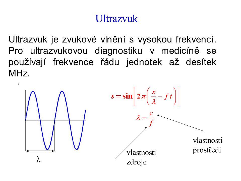 Ultrazvuk Ultrazvuk je zvukové vlnění s vysokou frekvencí.