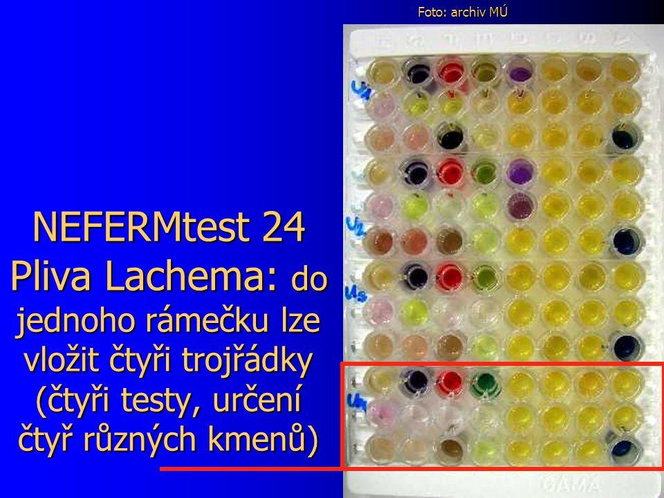 NEFERMtest 24 Pliva Lachema: do jednoho rámečku lze vložit čtyři trojřádky (čtyři testy, určení čtyř různých kmenů) Foto: archiv MÚ