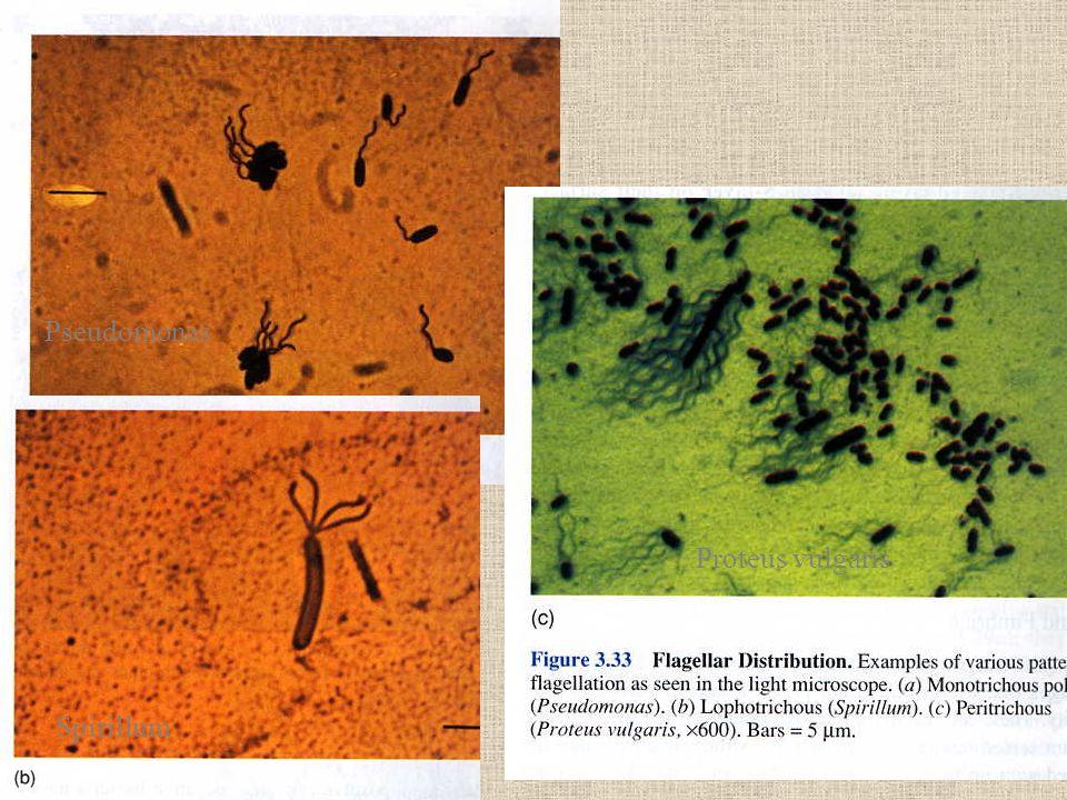 Pseudomonas Spirillum Proteus vulgaris