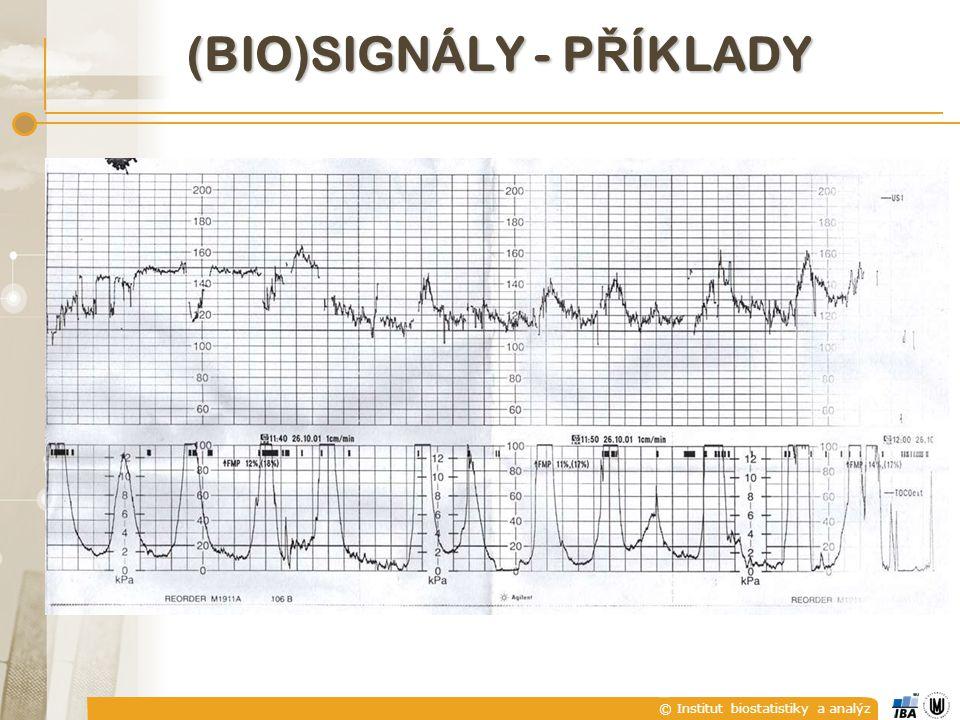 © Institut biostatistiky a analýz E) PERIODICKÉ A NEPERIODICKÉ SIGNÁLY  Analogový signál x(t) je periodický s periodou T, jestliže existuje hodnota T taková, že pro všechna t platí Nejmenší kladná hodnota T, pro kterou platí uvedený vztah se nazývá základní perioda.