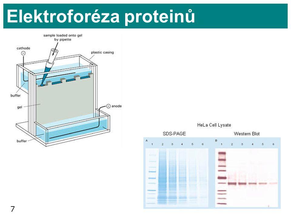 7 Elektroforéza proteinů