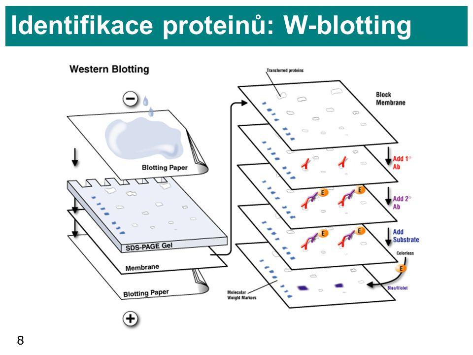 8 Identifikace proteinů: W-blotting