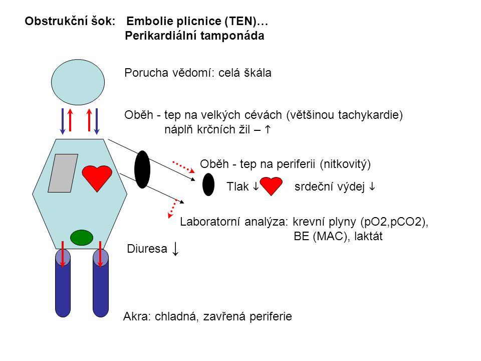 Porucha vědomí: celá škála Obstrukční šok: Embolie plicnice (TEN)… Perikardiální tamponáda Oběh - tep na velkých cévách (většinou tachykardie) náplň krčních žil –  Oběh - tep na periferii (nitkovitý) Laboratorní analýza: krevní plyny (pO2,pCO2), BE (MAC), laktát Akra: chladná, zavřená periferie Diuresa ↓ srdeční výdej  Tlak 