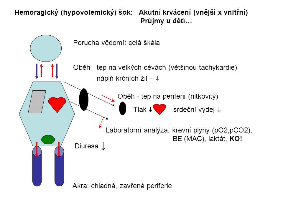 Porucha vědomí: celá škála Hemoragický (hypovolemický) šok: Akutní krvácení (vnější x vnitřní) Průjmy u dětí… Oběh - tep na velkých cévách (většinou tachykardie) náplň krčních žil –  Oběh - tep na periferii (nitkovitý) Laboratorní analýza: krevní plyny (pO2,pCO2), BE (MAC), laktát, KO.