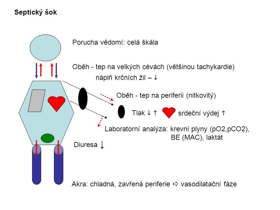 Porucha vědomí: celá škála Septický šok Oběh - tep na velkých cévách (většinou tachykardie) náplň krčních žil –  Oběh - tep na periferii (nitkovitý) Laboratorní analýza: krevní plyny (pO2,pCO2), BE (MAC), laktát Akra: chladná, zavřená periferie  vasodilatační fáze Diuresa ↓ srdeční výdej  Tlak  