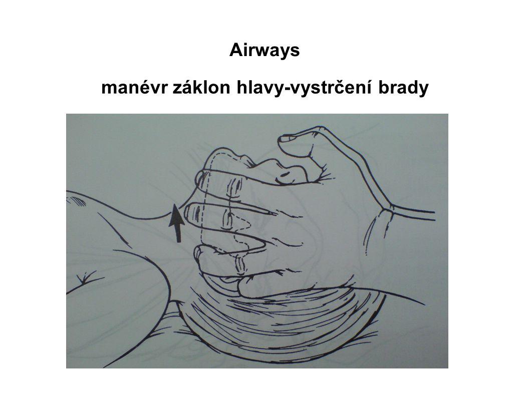 Airways manévr záklon hlavy-vystrčení brady