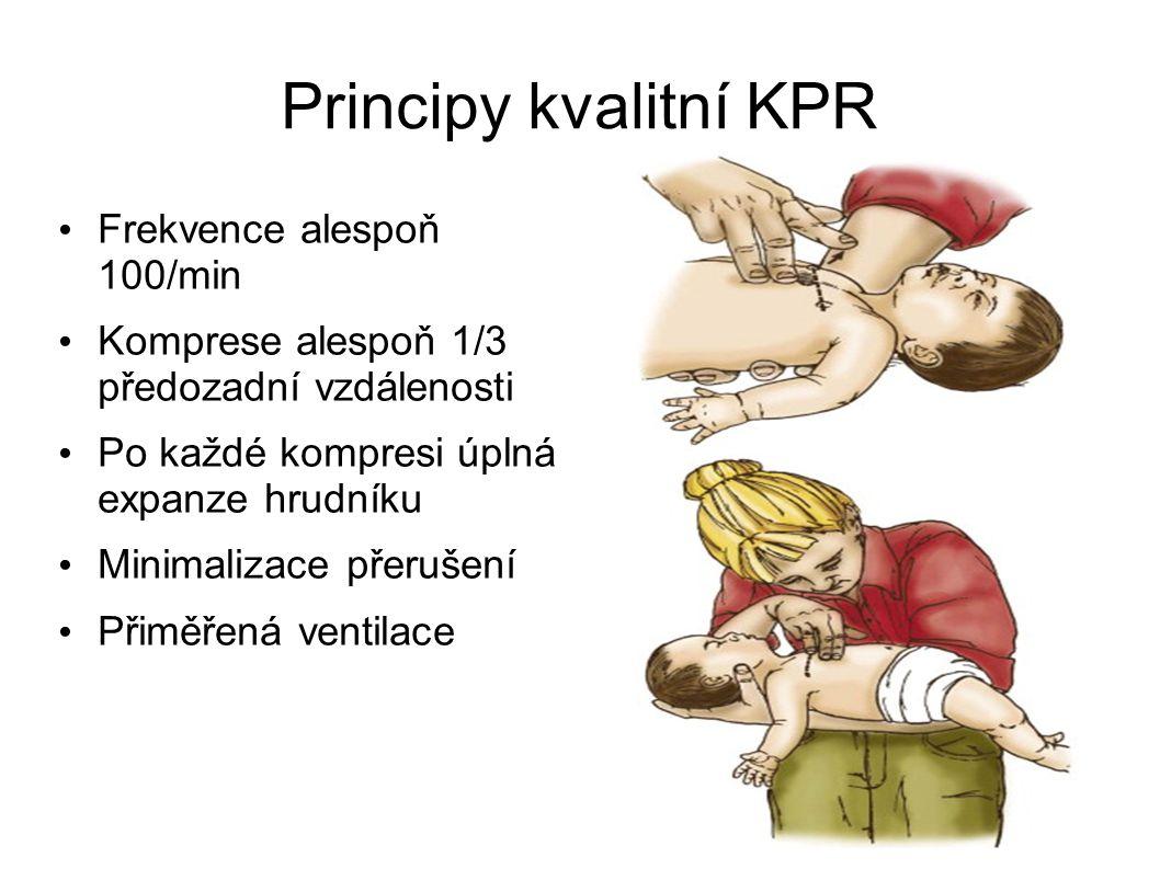 Principy kvalitní KPR Frekvence alespoň 100/min Komprese alespoň 1/3 předozadní vzdálenosti Po každé kompresi úplná expanze hrudníku Minimalizace přer