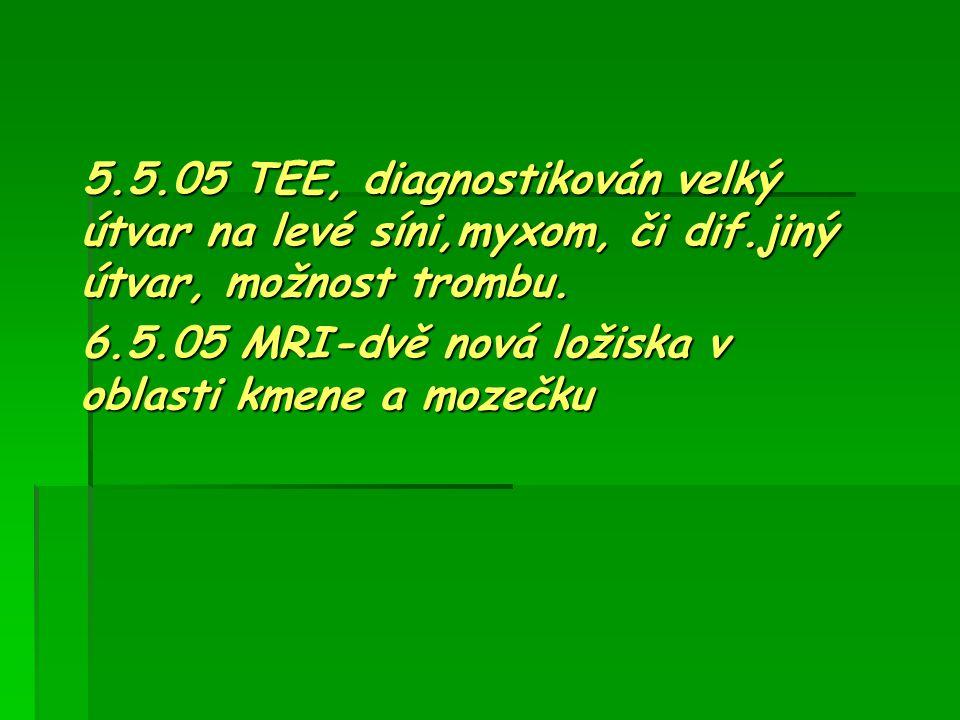 5.5.05 TEE, diagnostikován velký útvar na levé síni,myxom, či dif.jiný útvar, možnost trombu. 5.5.05 TEE, diagnostikován velký útvar na levé síni,myxo