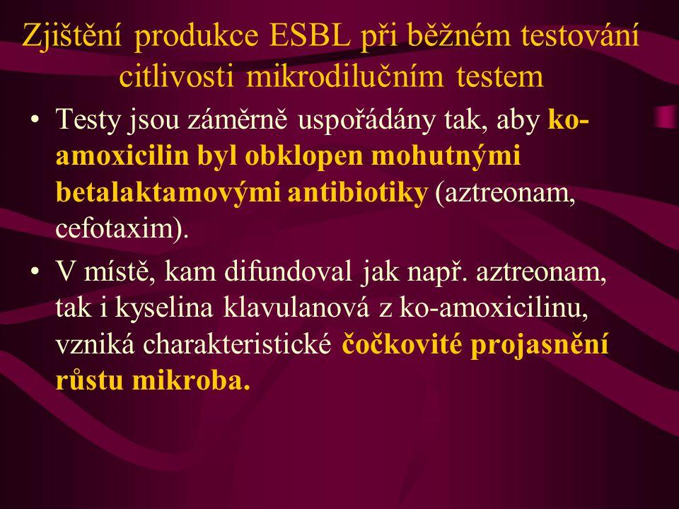Čočkovité projasnění www.labmed.cn/Article/wshw/200509/2992.html