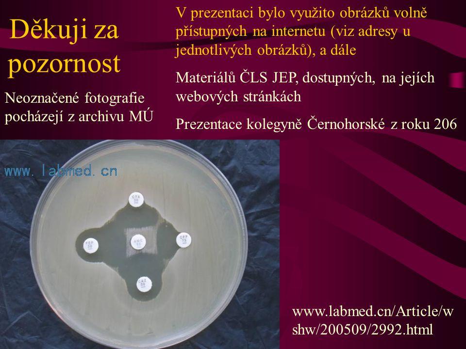 Děkuji za pozornost V prezentaci bylo využito obrázků volně přístupných na internetu (viz adresy u jednotlivých obrázků), a dále Materiálů ČLS JEP, dostupných, na jejích webových stránkách Prezentace kolegyně Černohorské z roku 206 Neoznačené fotografie pocházejí z archivu MÚ www.labmed.cn/Article/w shw/200509/2992.html