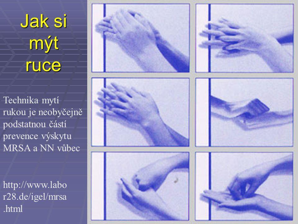 Jak si mýt ruce http://www.labo r28.de/igel/mrsa.html Technika mytí rukou je neobyčejně podstatnou částí prevence výskytu MRSA a NN vůbec