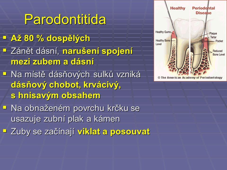 Parodontitida  Až 80 % dospělých  Zánět dásní, narušení spojení mezi zubem a dásní  Na místě dásňových sulků vzniká dásňový chobot, krvácivý, s hni