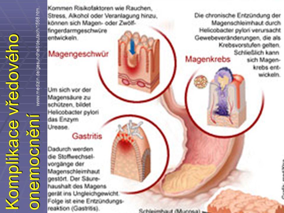 Komplikace vředového onemocnění www.medizin.de/gesundheit/deutsch/1568.htm.