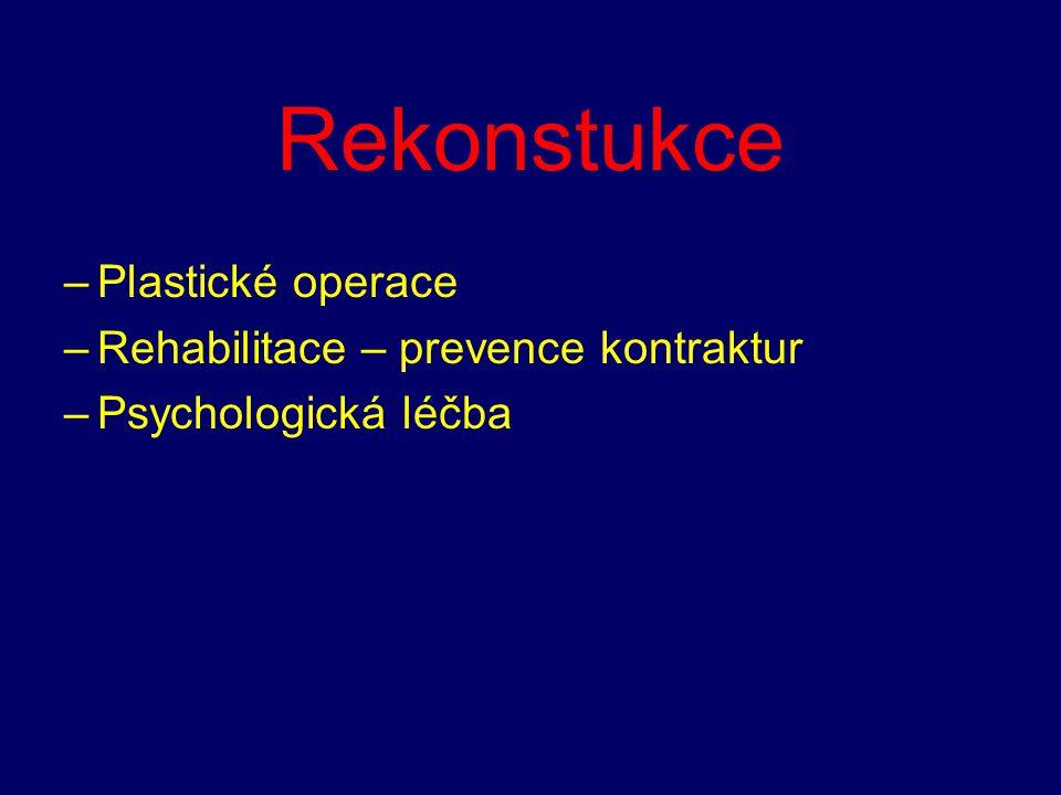 Rekonstukce –Plastické operace –Rehabilitace – prevence kontraktur –Psychologická léčba