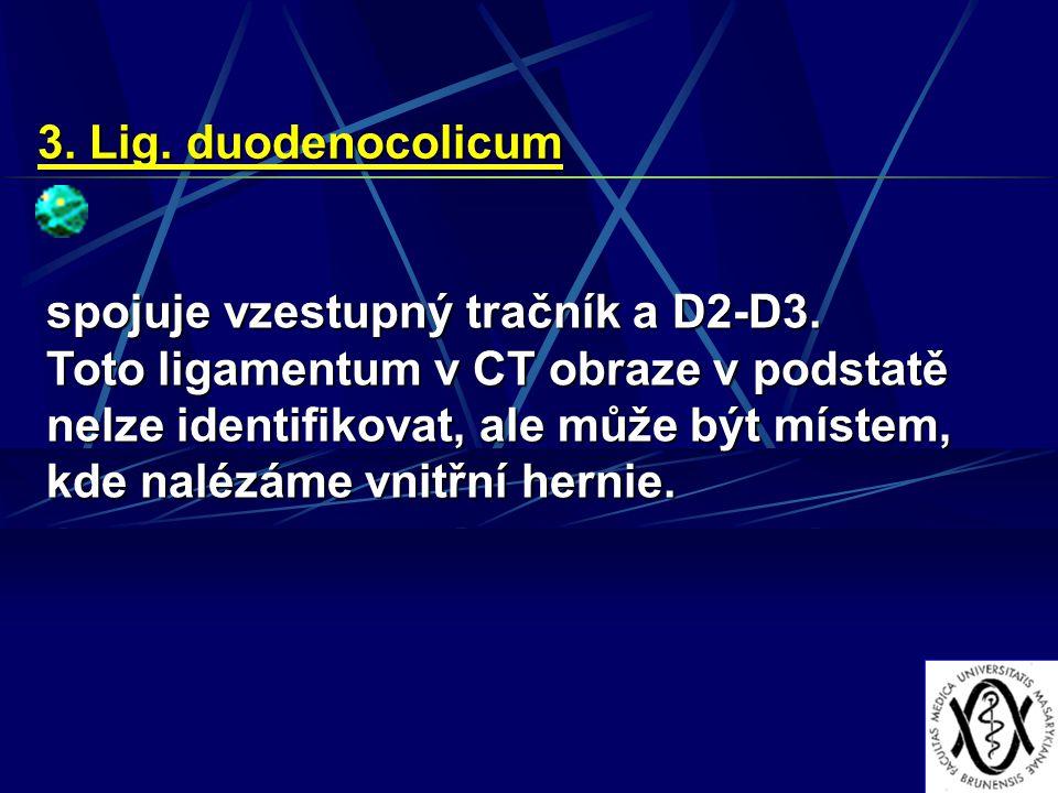 3. Lig. duodenocolicum spojuje vzestupný tračník a D2-D3. Toto ligamentum v CT obraze v podstatě nelze identifikovat, ale může být místem, kde nalézám