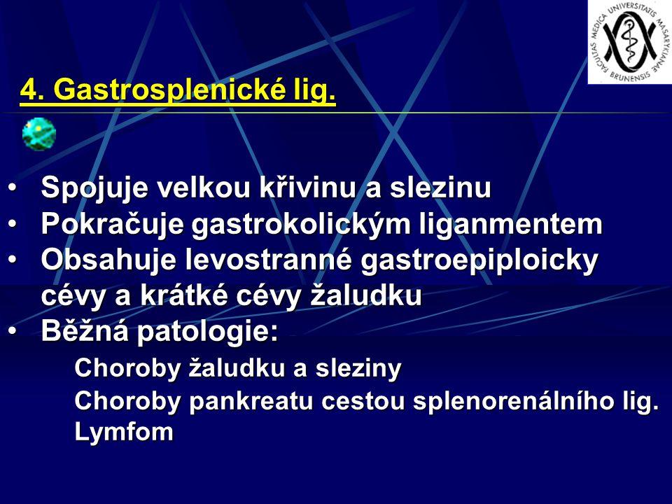 4. Gastrosplenické lig. Spojuje velkou křivinu a slezinuSpojuje velkou křivinu a slezinu Pokračuje gastrokolickým liganmentemPokračuje gastrokolickým