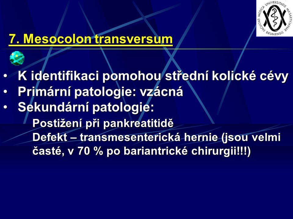 7. Mesocolon transversum K identifikaci pomohou střední kolické cévyK identifikaci pomohou střední kolické cévy Primární patologie: vzácnáPrimární pat