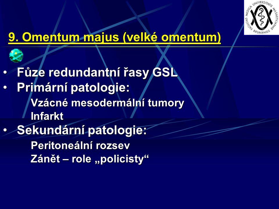 9. Omentum majus (velké omentum) Fůze redundantní řasy GSLFůze redundantní řasy GSL Primární patologie:Primární patologie: Vzácné mesodermální tumory