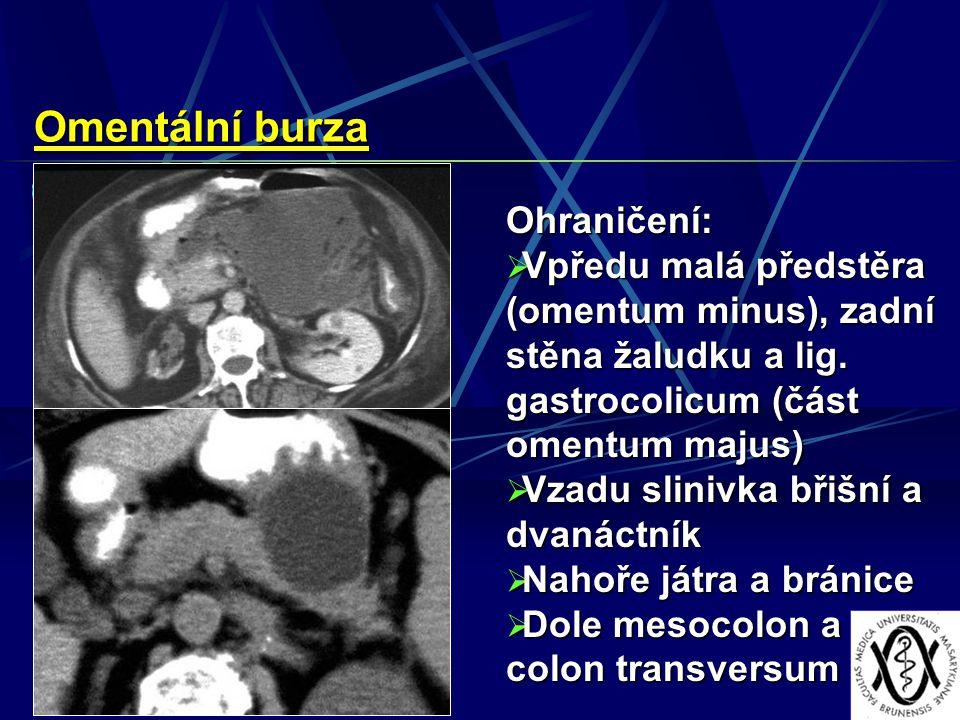 Omentální burza Ohraničení:  Vpředu malá předstěra (omentum minus), zadní stěna žaludku a lig. gastrocolicum (část omentum majus)  Vzadu slinivka bř