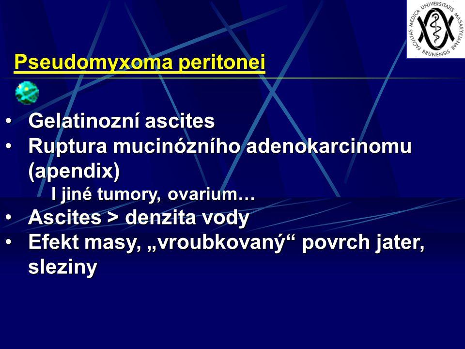 "Pseudomyxoma peritonei Gelatinozní ascitesGelatinozní ascites Ruptura mucinózního adenokarcinomu (apendix)Ruptura mucinózního adenokarcinomu (apendix) I jiné tumory, ovarium… Ascites > denzita vodyAscites > denzita vody Efekt masy, ""vroubkovaný povrch jater, slezinyEfekt masy, ""vroubkovaný povrch jater, sleziny"