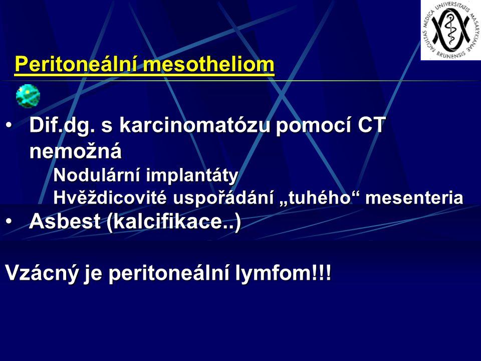 Peritoneální mesotheliom Dif.dg. s karcinomatózu pomocí CT nemožnáDif.dg. s karcinomatózu pomocí CT nemožná Nodulární implantáty Hvěždicovité uspořádá