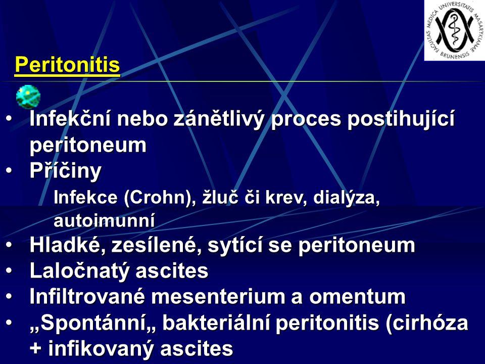 """Peritonitis Infekční nebo zánětlivý proces postihující peritoneumInfekční nebo zánětlivý proces postihující peritoneum PříčinyPříčiny Infekce (Crohn), žluč či krev, dialýza, autoimunní Hladké, zesílené, sytící se peritoneumHladké, zesílené, sytící se peritoneum Laločnatý ascitesLaločnatý ascites Infiltrované mesenterium a omentumInfiltrované mesenterium a omentum """"Spontánní"""" bakteriální peritonitis (cirhóza + infikovaný ascites""""Spontánní"""" bakteriální peritonitis (cirhóza + infikovaný ascites"""