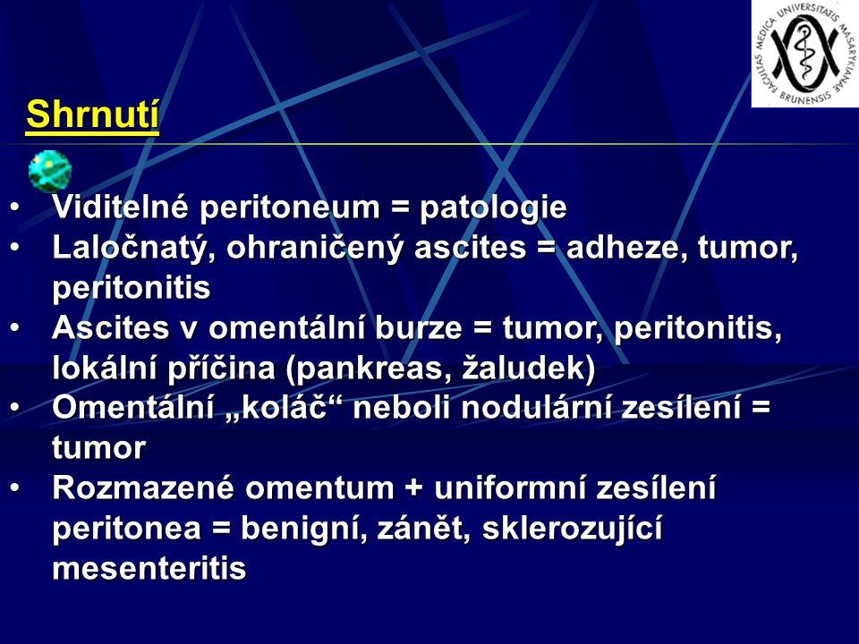 """Shrnutí Viditelné peritoneum = patologieViditelné peritoneum = patologie Laločnatý, ohraničený ascites = adheze, tumor, peritonitisLaločnatý, ohraničený ascites = adheze, tumor, peritonitis Ascites v omentální burze = tumor, peritonitis, lokální příčina (pankreas, žaludek)Ascites v omentální burze = tumor, peritonitis, lokální příčina (pankreas, žaludek) Omentální """"koláč neboli nodulární zesílení = tumorOmentální """"koláč neboli nodulární zesílení = tumor Rozmazené omentum + uniformní zesílení peritonea = benigní, zánět, sklerozující mesenteritisRozmazené omentum + uniformní zesílení peritonea = benigní, zánět, sklerozující mesenteritis"""