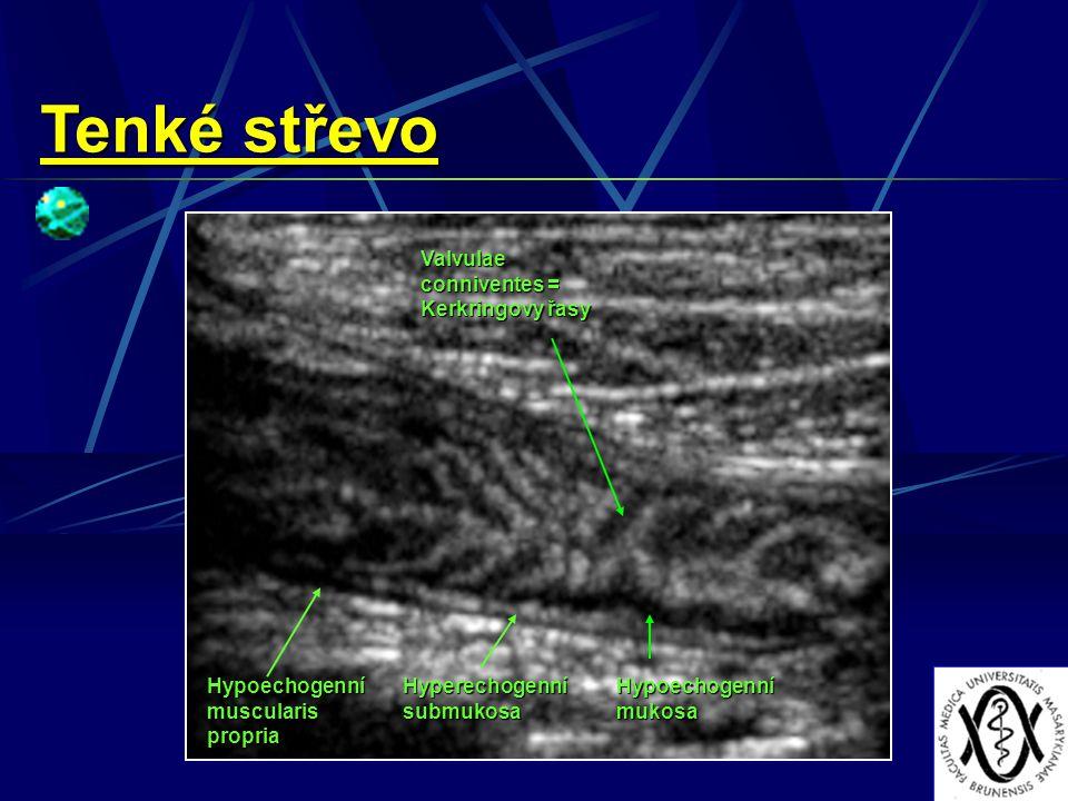 Hypoechogenní muscularis propria Hyperechogenní submukosa Hypoechogenní mukosa Valvulae conniventes = Kerkringovy řasy Tenké střevo