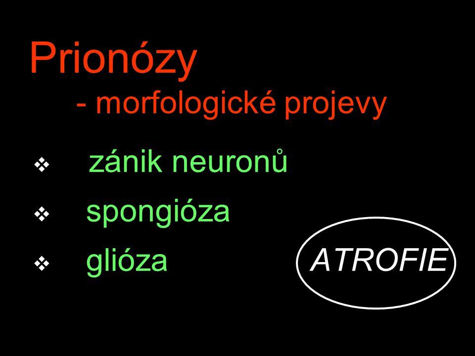 Prionózy - morfologické projevy v zánik neuronů v spongióza v glióza ATROFIE