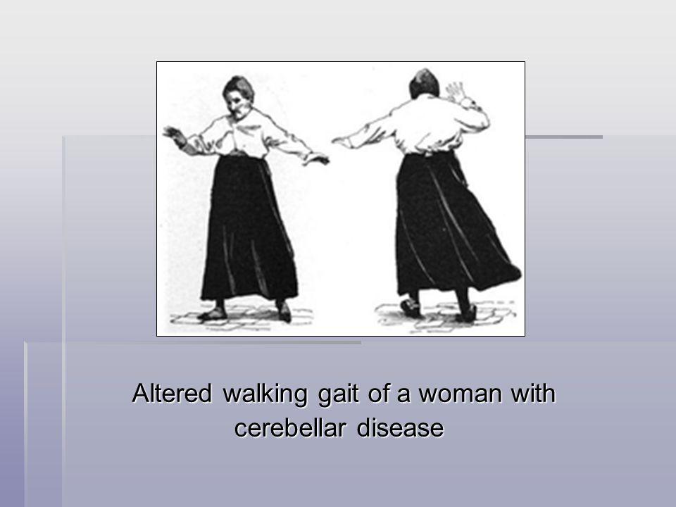Altered walking gait of a woman with cerebellar disease cerebellar disease