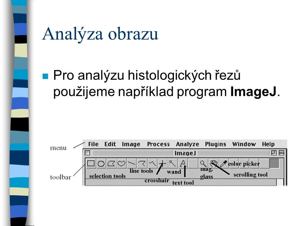 Analýza obrazu n Pro analýzu histologických řezů použijeme například program ImageJ.
