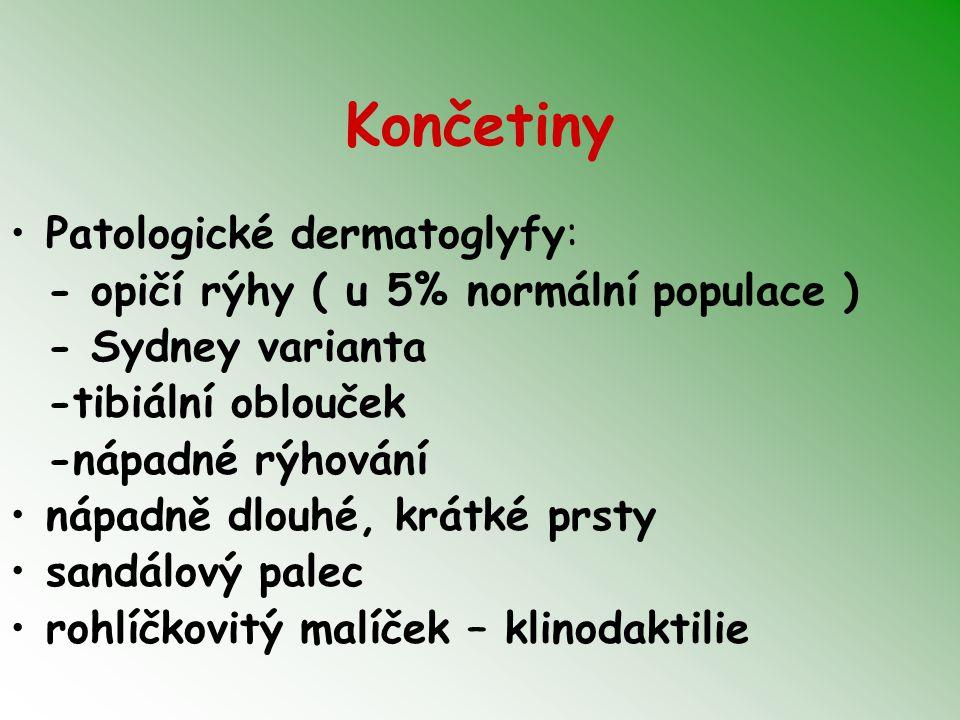 Končetiny Patologické dermatoglyfy: - opičí rýhy ( u 5% normální populace ) - Sydney varianta -tibiální oblouček -nápadné rýhování nápadně dlouhé, krátké prsty sandálový palec rohlíčkovitý malíček – klinodaktilie