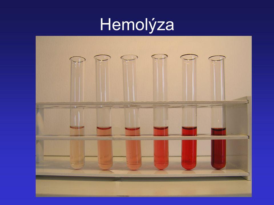 21 Hemolýza