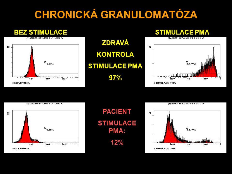 CHRONICKÁ GRANULOMATÓZA ZDRAVÁ KONTROLA STIMULACE PMA 97% PACIENT STIMULACE PMA: 12% BEZ STIMULACESTIMULACE PMA