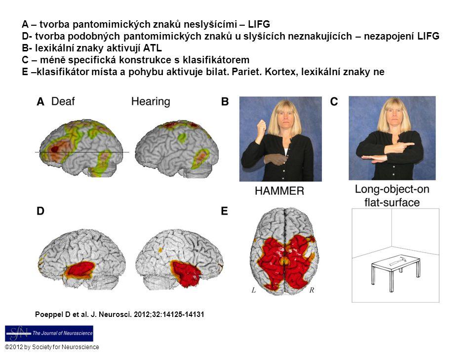 Poeppel D et al. J. Neurosci. 2012;32:14125-14131 ©2012 by Society for Neuroscience A – tvorba pantomimických znaků neslyšícími – LIFG D- tvorba podob