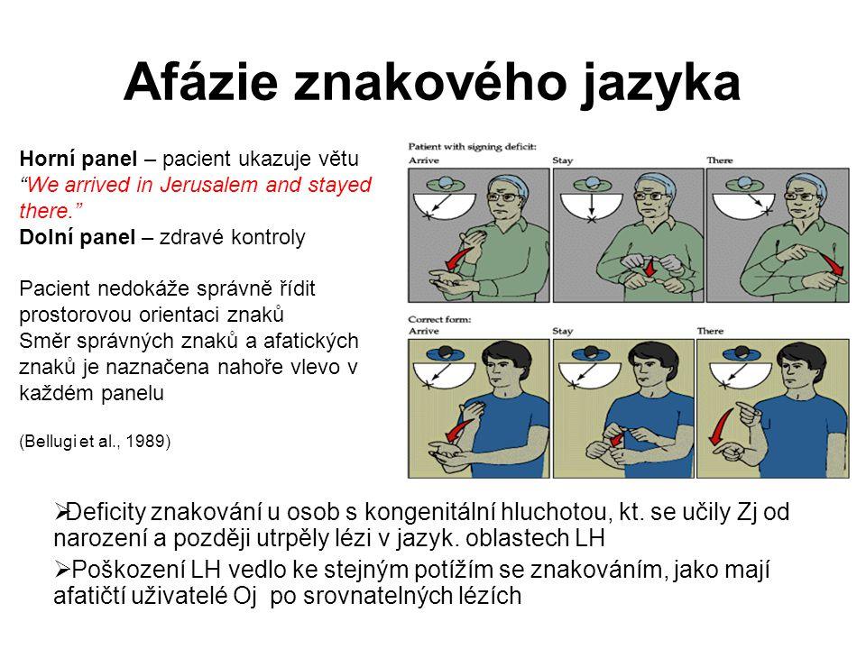 Afázie znakového jazyka  Deficity znakování u osob s kongenitální hluchotou, kt. se učily Zj od narození a později utrpěly lézi v jazyk. oblastech LH