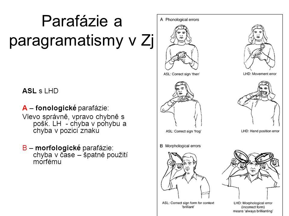 Parafázie a paragramatismy v Zj ASL s LHD A – fonologické parafázie: Vlevo správně, vpravo chybně s pošk. LH - chyba v pohybu a chyba v pozici znaku B