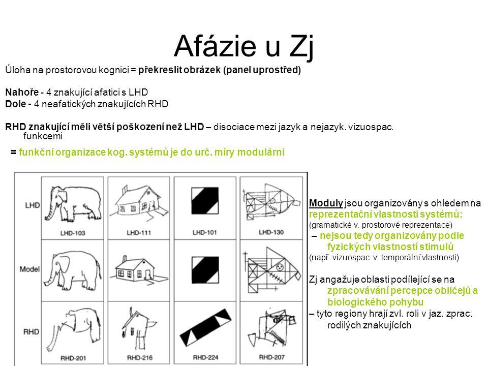 Afázie u Zj Úloha na prostorovou kognici = překreslit obrázek (panel uprostřed) Nahoře - 4 znakující afatici s LHD Dole - 4 neafatických znakujících R