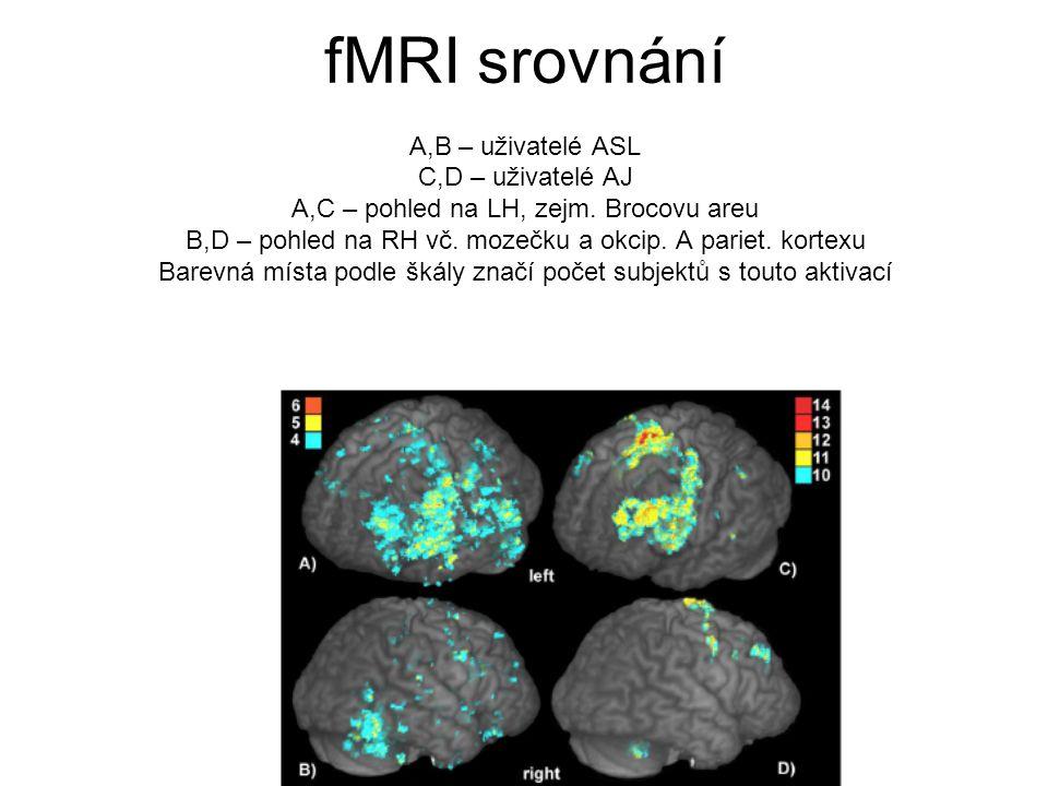 fMRI srovnání A,B – uživatelé ASL C,D – uživatelé AJ A,C – pohled na LH, zejm. Brocovu areu B,D – pohled na RH vč. mozečku a okcip. A pariet. kortexu