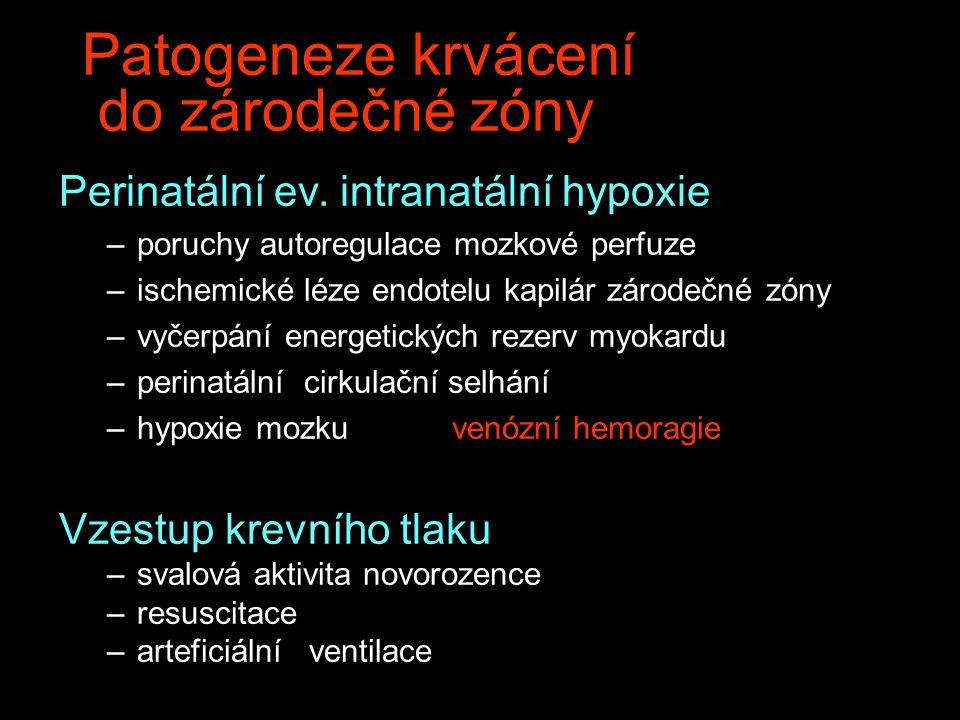 Patogeneze krvácení do zárodečné zóny Perinatální ev. intranatální hypoxie –poruchy autoregulace mozkové perfuze –ischemické léze endotelu kapilár zár