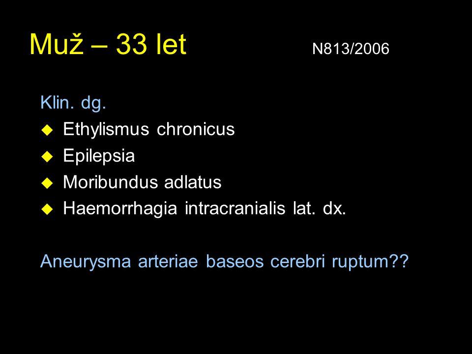 Muž – 33 let N813/2006 Klin. dg. u Ethylismus chronicus u Epilepsia u Moribundus adlatus u Haemorrhagia intracranialis lat. dx. Aneurysma arteriae bas