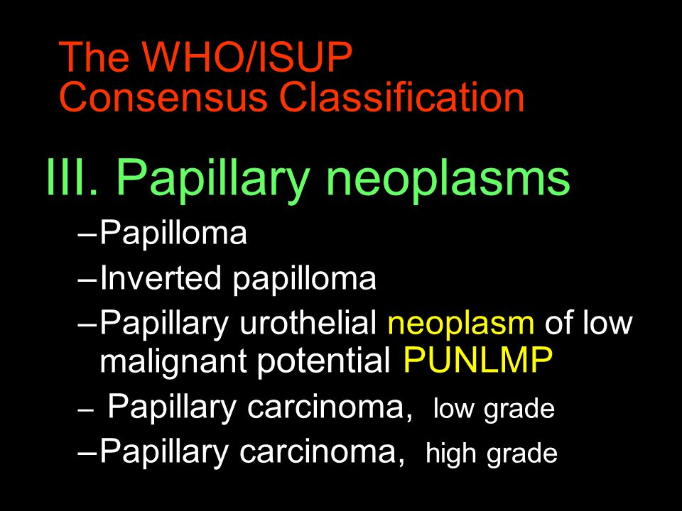 The WHO/ISUP Consensus Classification III. Papillary neoplasms –Papilloma –Inverted papilloma –Papillary urothelial neoplasm of low malignant potentia