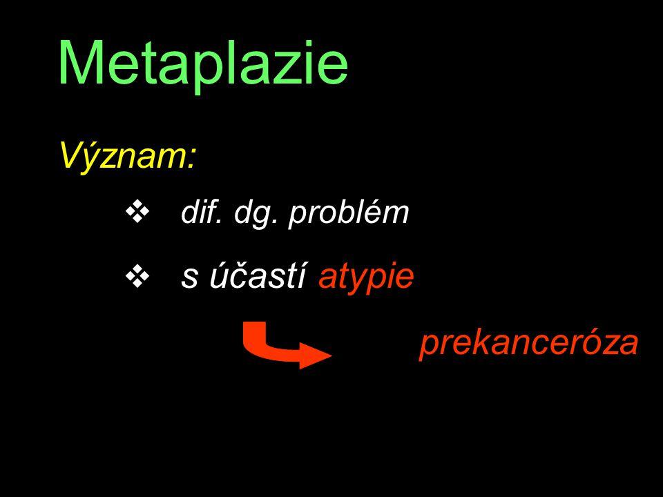 Metaplazie Význam: v dif. dg. problém v s účastí atypie prekanceróza
