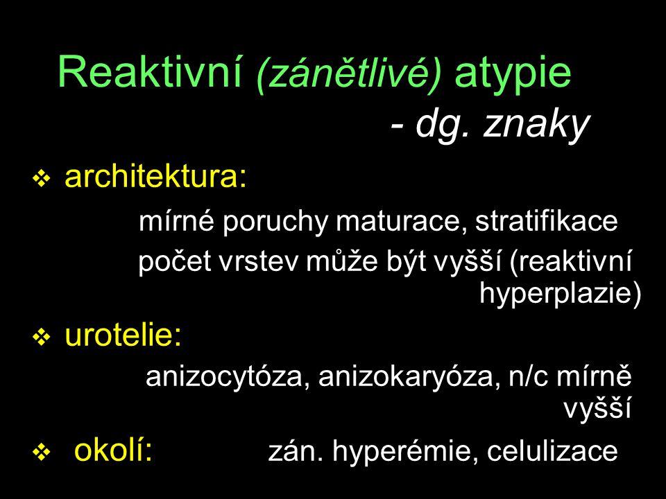 Reaktivní (zánětlivé) atypie - dg. znaky v architektura: mírné poruchy maturace, stratifikace počet vrstev může být vyšší (reaktivní hyperplazie) v ur