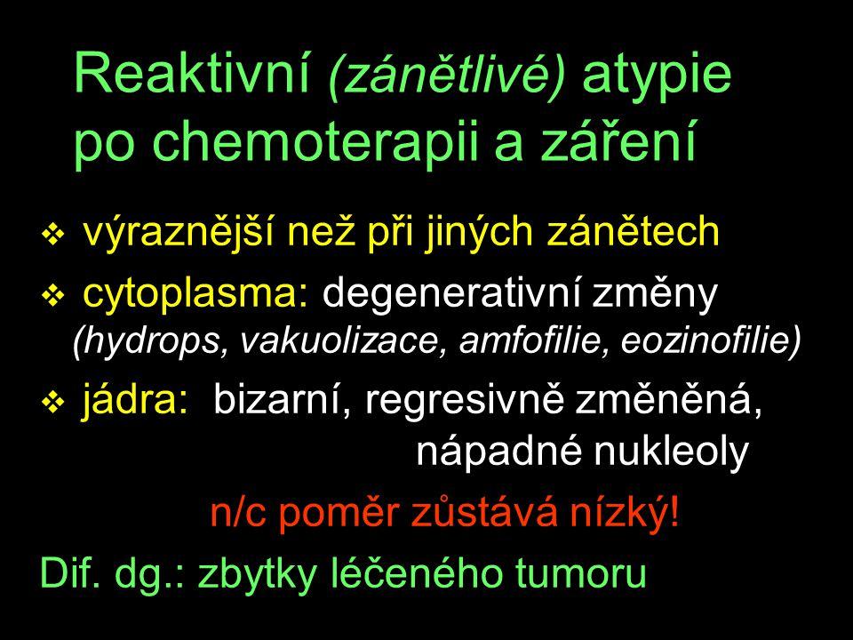 Reaktivní (zánětlivé) atypie po chemoterapii a záření v výraznější než při jiných zánětech v cytoplasma: degenerativní změny (hydrops, vakuolizace, amfofilie, eozinofilie) v jádra: bizarní, regresivně změněná, nápadné nukleoly n/c poměr zůstává nízký.