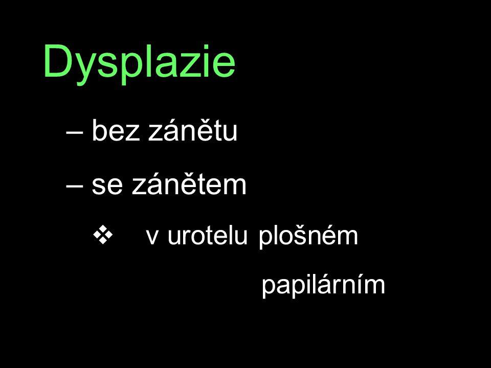 Dysplazie – bez zánětu – se zánětem v v urotelu plošném papilárním