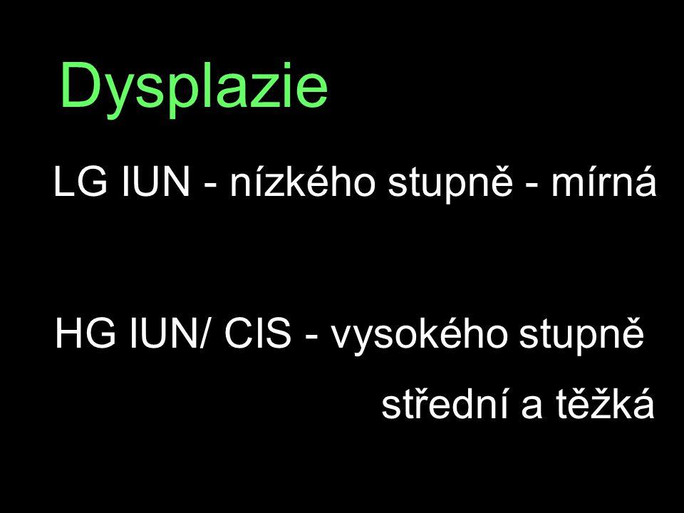 Dysplazie LG IUN - nízkého stupně - mírná HG IUN/ CIS - vysokého stupně střední a těžká