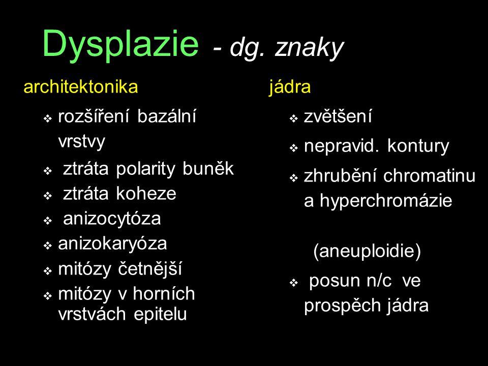 Dysplazie - dg.